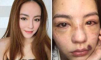 刘燕妮(Rika)外型甜美亮眼被打成猪头 宣布退出